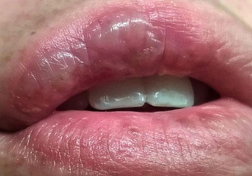 Волдырь на губе