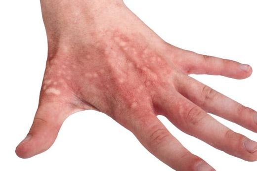 ожог руки после медузы
