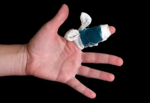 поврежденный палец на руке