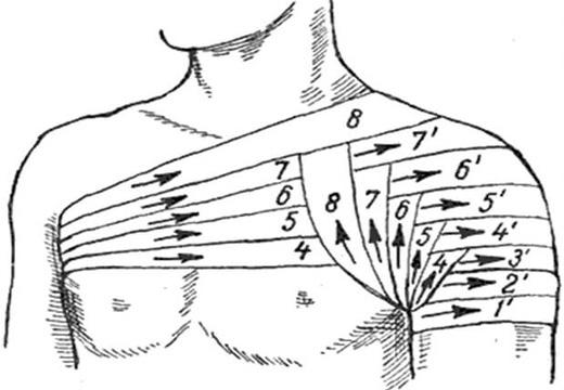перевязка плеча