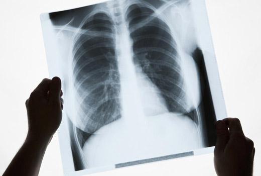 рентгеновский снимок легкого