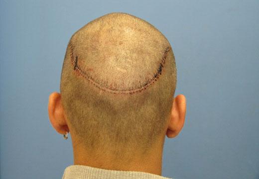 Большой шрам на голове