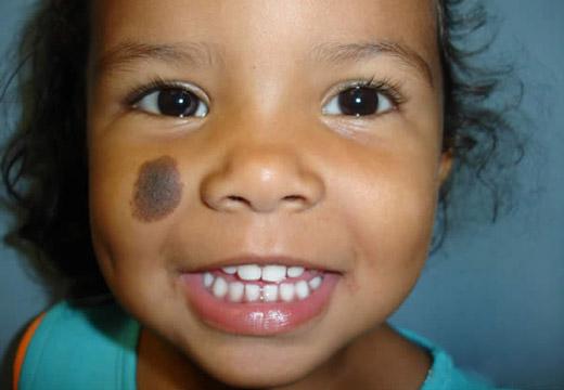 большое родимое пятно на щеке