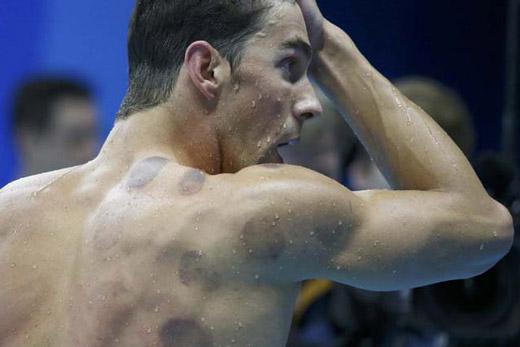 Шрамы на спине у мужчины