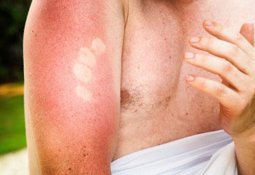 Солнечный ожог кожи