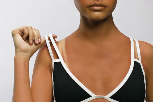 обгоревшая кожа у женщины