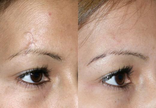 до и после лечения шрамов