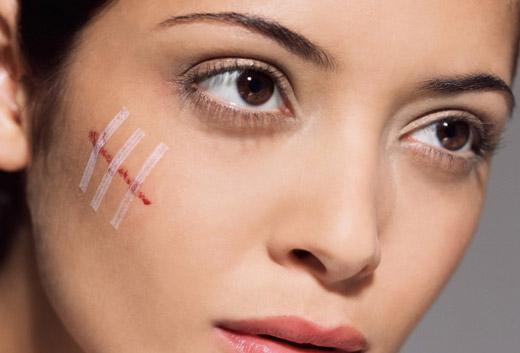 шрам на щике у женщины